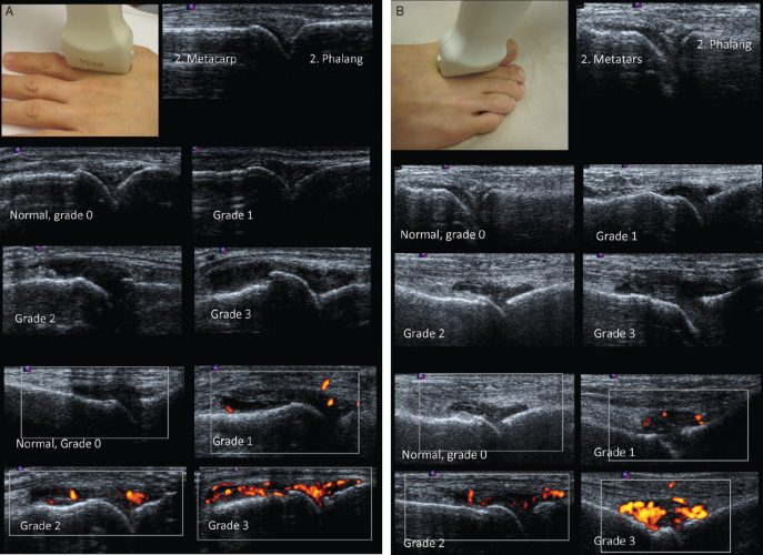 Terslev L, Naredo E, Aegerter P, Wakefield RJ, Backhaus M, Balint P, et al.;  Scoring ultrasound synovitis in rheumatoid arthritis: a EULAR-OMERACT ultrasound taskforce-Part 2: reliability and application to multiple joints of a standardised consensus-based scoring system. RMD Open; 2017